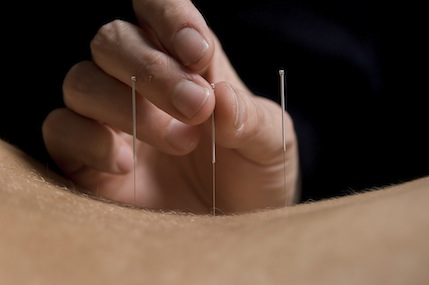 About Acupuncture #01